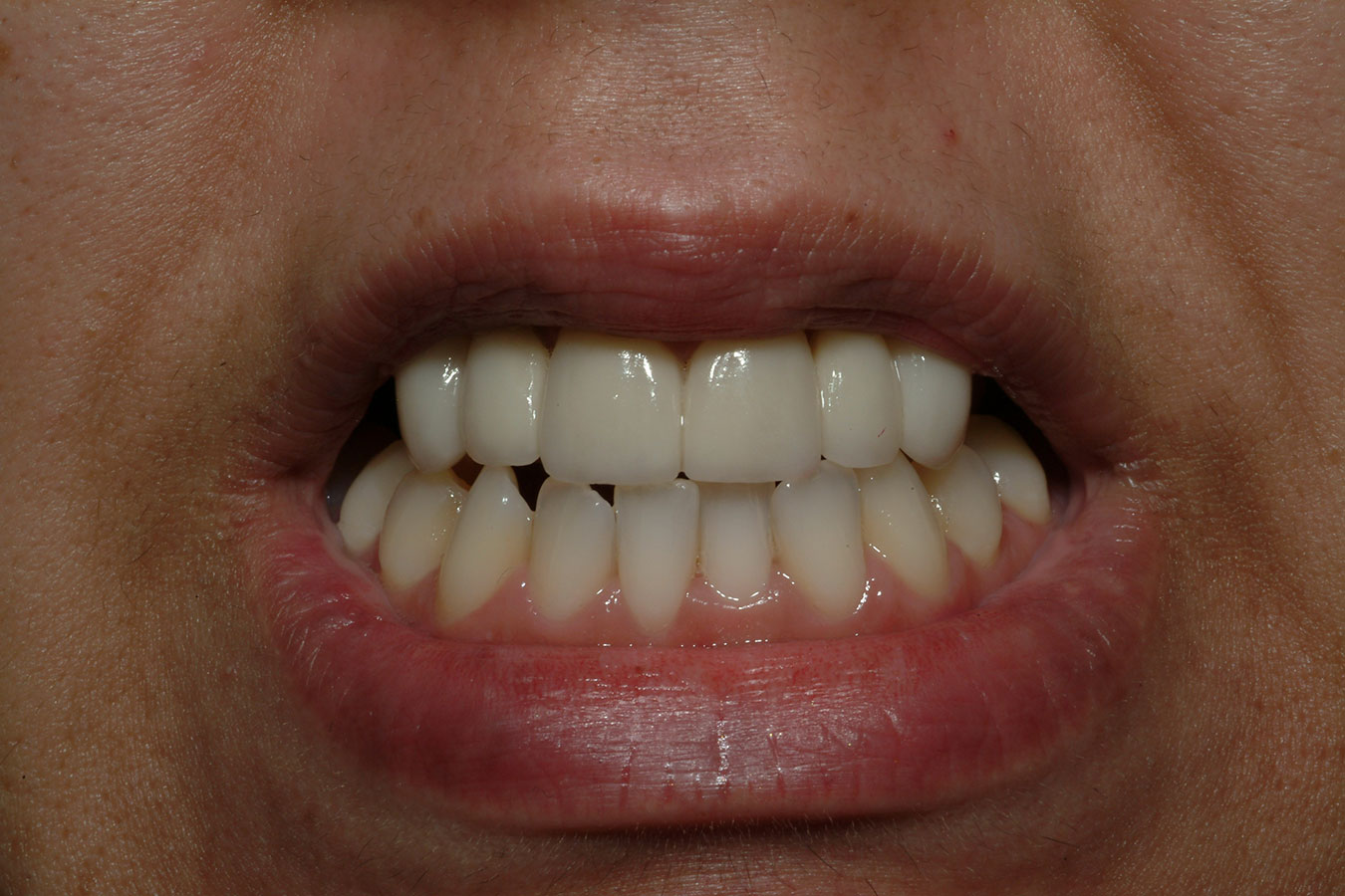 After photo of straight and white teeth