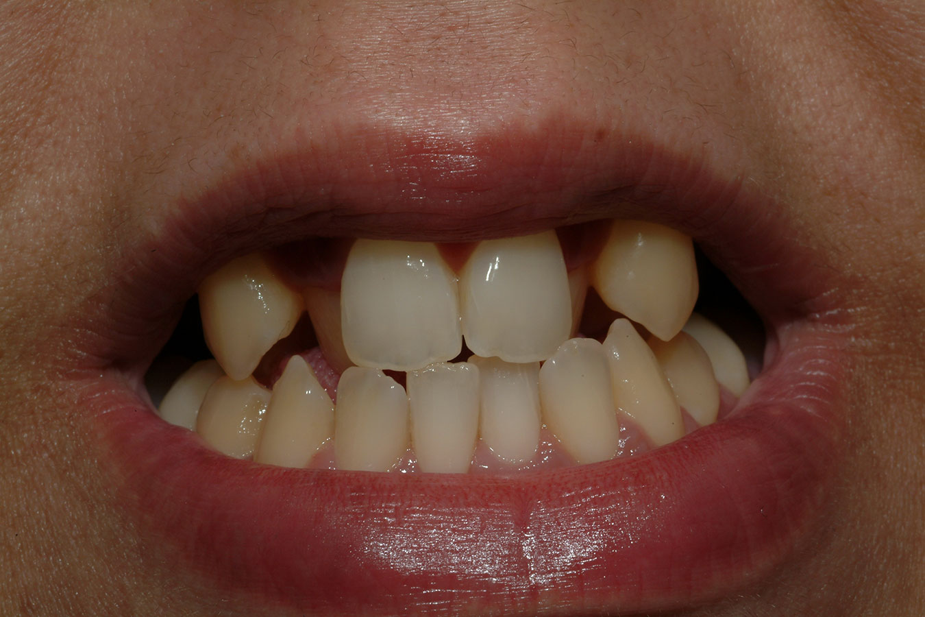 Before photo of broken and crooked teeth