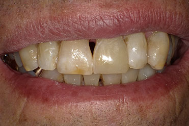 after of repaired chipped tooth