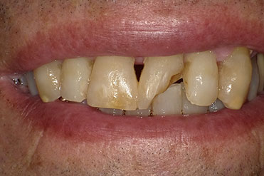 before of repaired chipped tooth