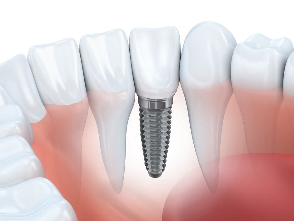 Dental Implants in Columbus, New Albany and Bexley, Ohio